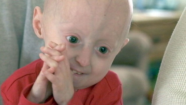 VIDEO: Lindsay suffers from Progeria, a condition that makes her body age rapidly.