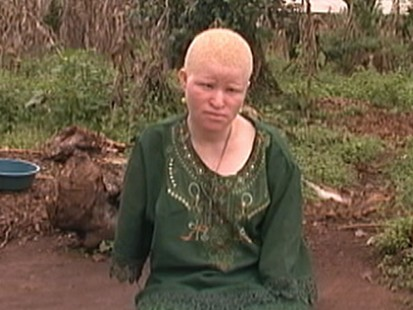 Tanzanians with Albinism Hunted