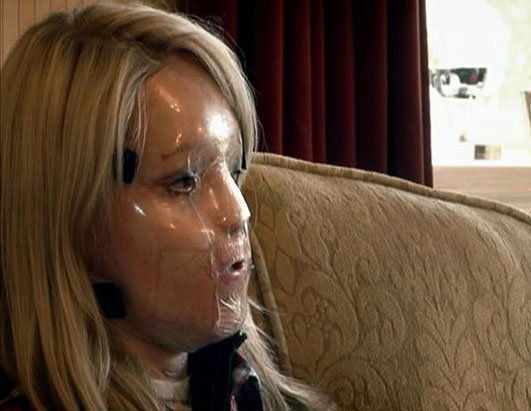 Photo: British model Katie Piper was brutally burned when a stranger threw sulfuric acid in her face.