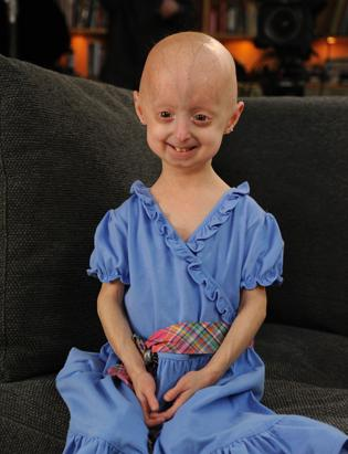 Barbara Walters Progeria