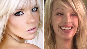 After Face Melted in Hideous Attack, Katie Piper Reclaims Identity