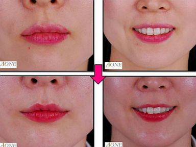 PHOTO: Lip Tylt Surgery, South Korea