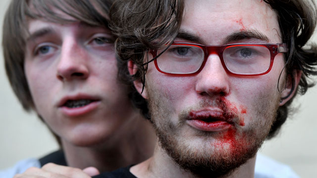 PHOTO: A gay rights activist is seen after clashes with anti-gay demonstrators during a gay pride event in St. Petersburg on June 29, 2013.