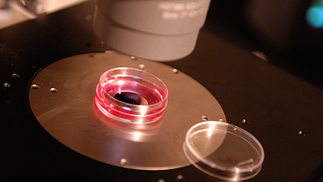 PHOTO:Embriologist Terry Schlenker examines a research egg that had been frozen through a Vitrification Process at the Colorado Center for Reproductive Medicine in Eglewood, CO on Monday October 09, 2007.