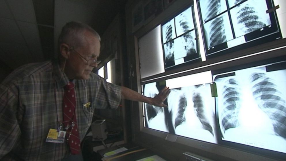 PHOTO: Dr. Paul Wheeler of Johns Hopkins examines lung X-rays.