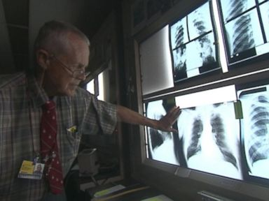 New Hope for Coal Miners Seeking Black Lung Benefits