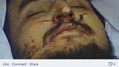 PHOTO: The Pakistani Talibans media arm, Umar Media, posted on Facebook this photo, purportedly an image of Taliban leader Hakimullah Mehsud, shortly after he was killed in a drone strike.