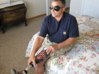 Iraq War Veteran Has to Fight AIG  For New Plastic Leg, Wheelchair