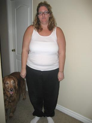 Thousands of people signed up, including Cassie Gibbons, seen here before surgery, who lost more than 100 pounds and was later featured in 1-800-Get-Thin ads.