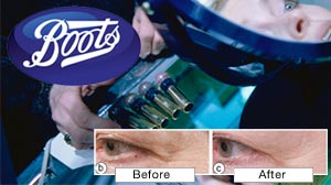 Photo: Boots is selling a new anti-aging cream that scientists say is the first clinically tested over-the-counter cosmetic proven to reduce wrinkles.