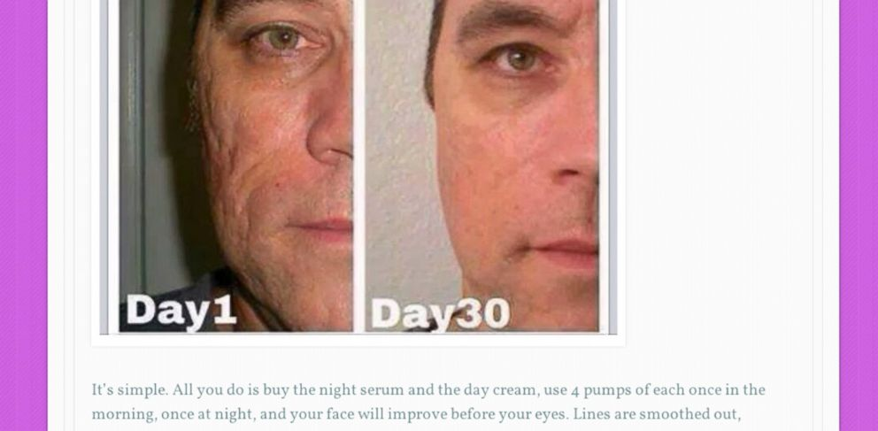 PHOTO: Ray Liotta is pictured in before and after images, allegedly using a skin product the actor claims he has no involvement with.