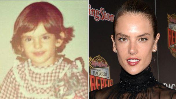 GTY alessandra ambrosio split sr 131213 16x9 608 Victorias Secret Model Alessandra Ambrosio Reveals Botched Plastic Surgery at Age 11