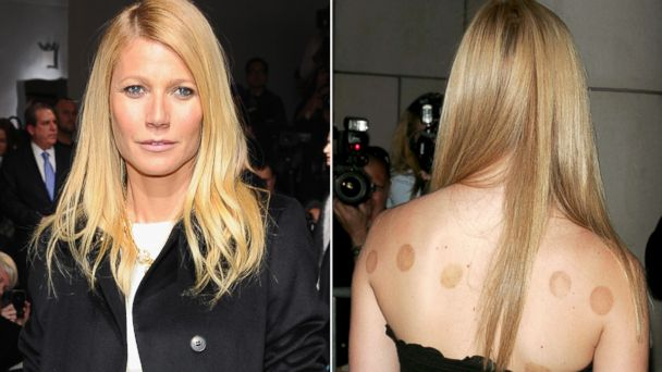 PHOTO: Celebrity Cupping