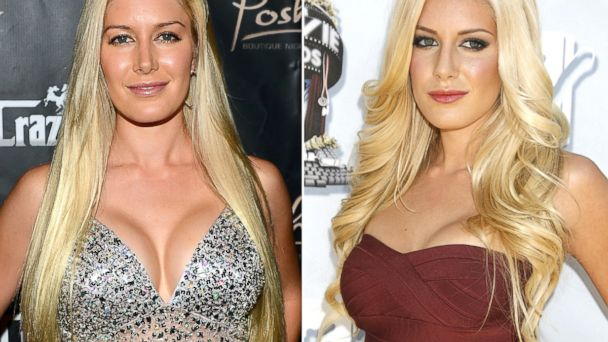 PHOTO: This combination of Aug. 31, 2013 and June 1, 2008 photos shows Heidi Montag.