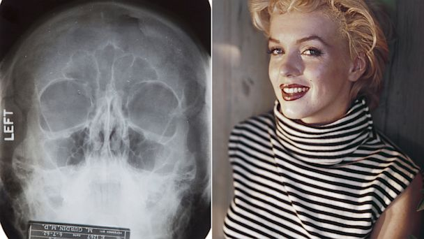 HT marilyn monroe x ray nt 131009 16x9 608 Notes Suggesting Marilyn Monroe Plastic Surgery for Sale