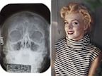 PHOTO: An X-ray of Marilyn Monroe's