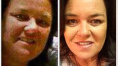PHOTO: Rosie ODonnell tweeted this photo of herself showing her weight loss, April 17, 2014.