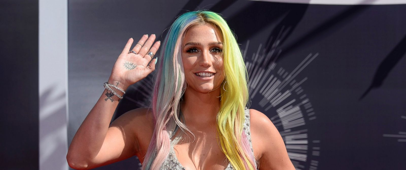 PHOTO: Kesha arrives at the 2014 MTV Music Video Awards in this file photo taken Aug. 24, 2014, in Inglewood, Calif.