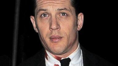 Tom Hardy Gets Bloody for Legend