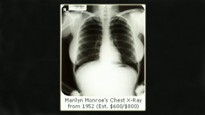 VIDEO: A 1952 X-ray of Marilyn Monroes chest sells for $45,000 at auction.
