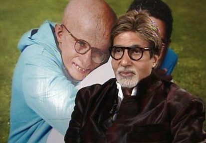 VIDEO: 68-year-old actor Amitabh Bachchan plays a boy with Progeria in the movie Paa.