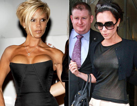 Victoria Beckham Admits to Having Her Implants Removed