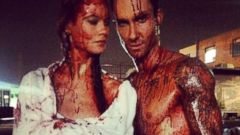 Adam Levine Shares a Bloody Photo of Himself with His Wife