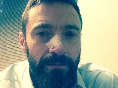 Hugh Jackman Reveals 2nd Bout of Skin Cancer