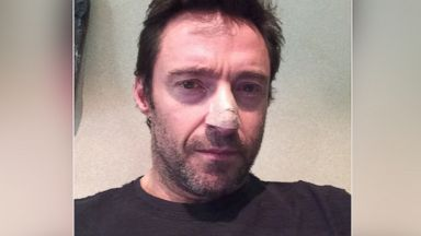 "PHOTO: Actor Hugh Jackman posted this photo on his Instagram account on Nov. 21, 2013 with the caption, ""Deb said to get the mark on my nose checked. Boy, was she right! I had a basil cell carcinoma."""