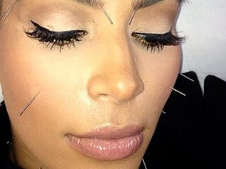 Photos: Kardashian's Face Full of Needles