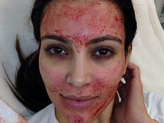 Photos: Kim Kardashian's Blood Facial