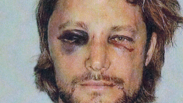 PHOTO: These are the brutal injuries Gabriel Aubry claims he suffered at the hands of Halle Berry's fiance Olivier Martinez on Nov. 22, 2012, Los Angeles.