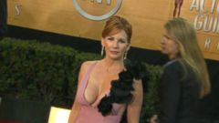 VIDEO: Melissa Gilbert Explains Why She Removed Breast Implants