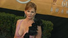 VIDEO: Melissa Gilbert Opens Up About Removing Breast Implants