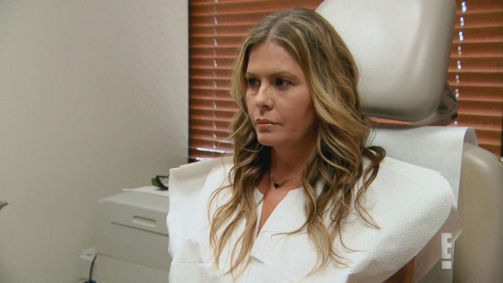 'Baywatch' Star Opens Up About Plastic Surgery Video - ABC ...