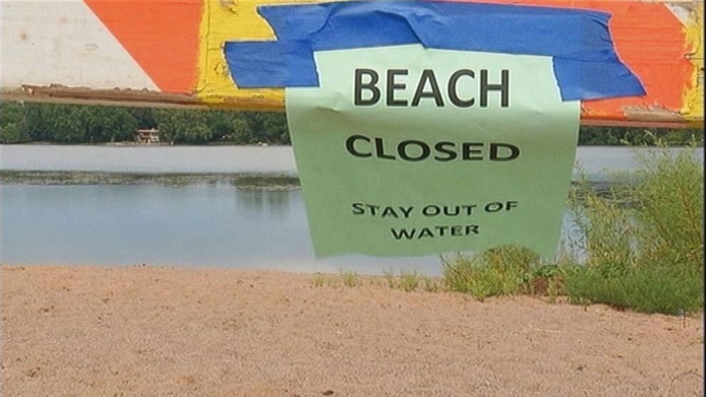 Teen Dies From Brain Eating Amoeba After Lake Swim Video Abc News