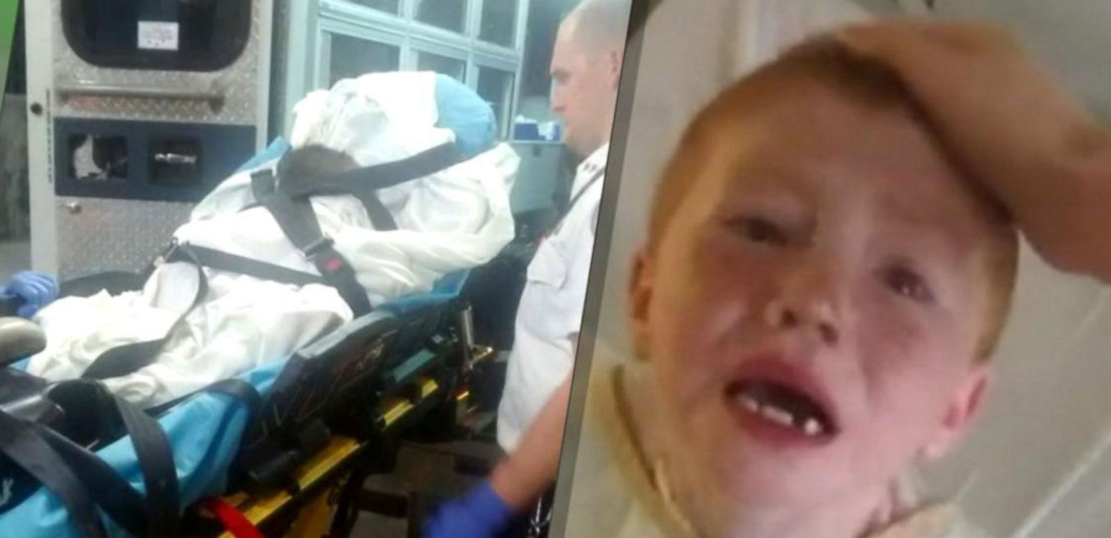 VIDEO: Two Boys Severely Sunburned at Daycare Outing