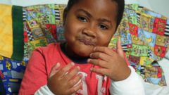 VIDEO: Historic Dual Hand Transplant Gives Boy Second Chance at Life