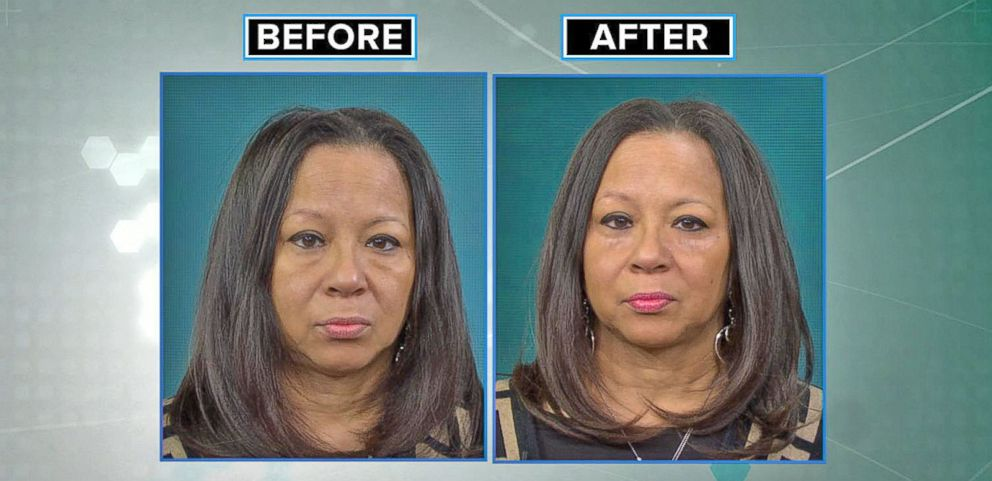 VIDEO: Is Popular Under Eye Bag Solution to Be Believed? GMA Tries It!