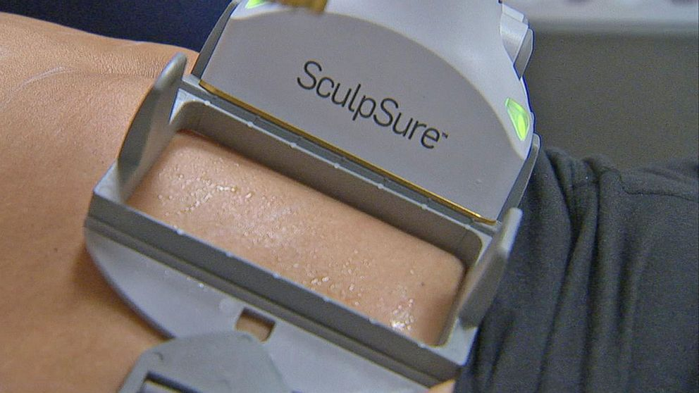 VIDEO: Non-Surgical Procedure Destroys Fat Cells in Under an Hour