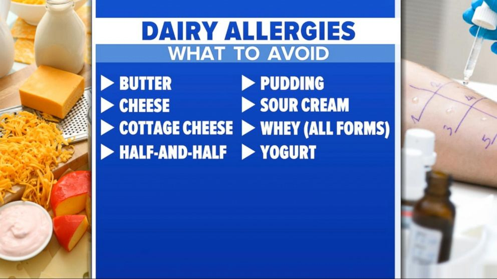 WATCH: 'GMA' Hot List: What to know about kids and dairy allergies