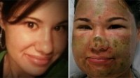 Woman Badly Burned in Acid Attack Still 'Happy'
