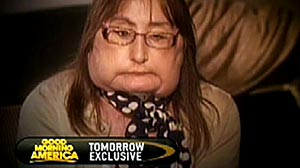 Photo: First U.S. face transplant patient Connie Culp