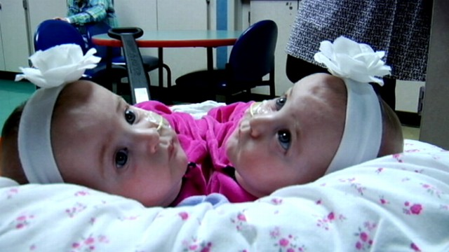 VIDEO: A complex surgery took a team of 40 doctors seven hours to separate the twins.