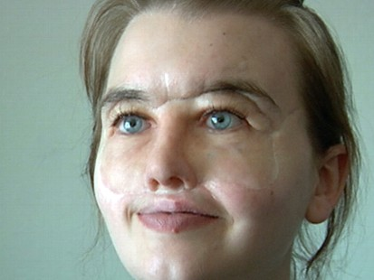 VIDEO: Shot 40 times in the head, Chrissy Steltz received a face transplant.