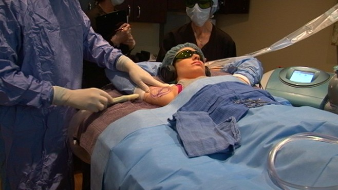 VIDEO: An untested procedure is getting attention as a way to fight off perspiration.