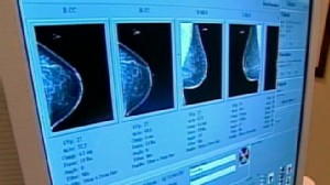 VIDEO: Dr. Richard Besser explains conflicting studies on mammograms.