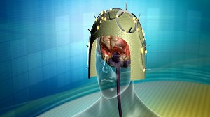 Cutting Edge: Inside the Brain