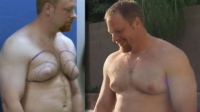 PHOTO: Erik Holler is a gentleman who had gynecomastia, a cosmetic surgery to remove is male breasts.