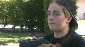 VIDEO: The young man who was burned over 65 percent of his body, starts over.